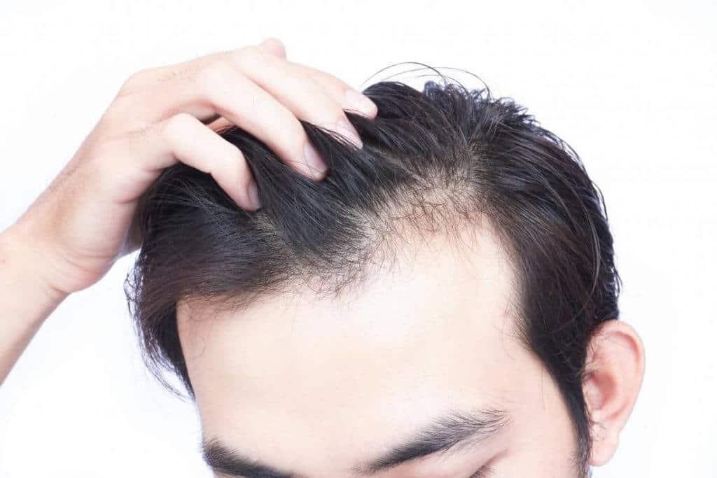 تساقط الشعر مشكلة جدية لعدد كبير من الرجال وحتى لبعض النساء