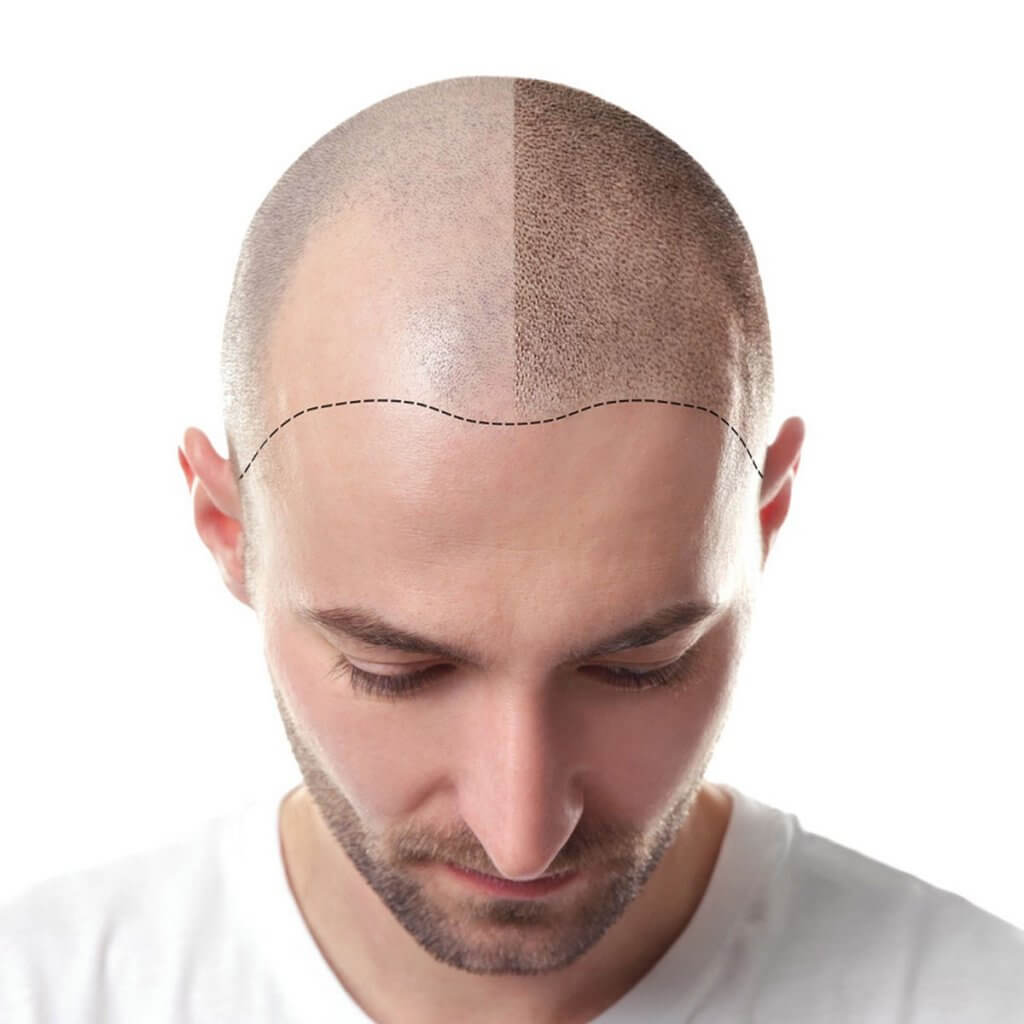 زراعة الشعر في شيراز